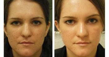 acne-scar-treatment-nyc