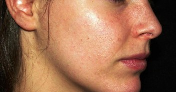 rosacea-cheeks-hd-young-looking-skin-find-out-the-best-way-to-get-beautiful-skin-image