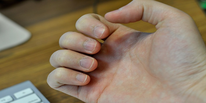 Chewing Nails Can Be More Dangerous1