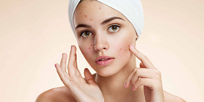 Natural Acne Clearer