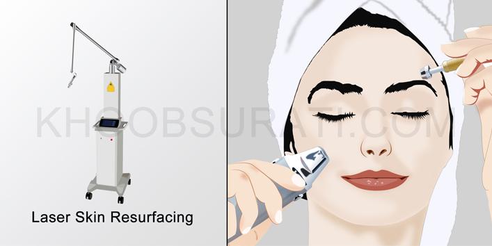 laser-skin-resufacing707_354