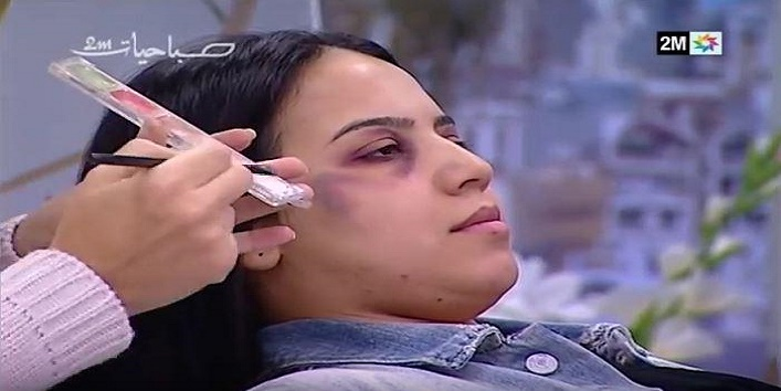 morocco-state-tv-channel-airs-makeup-technique-to-hide-beating-marks-2