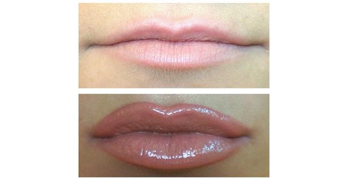 Flat Lips