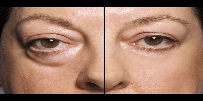 To-Reduce-Eye-Swelling