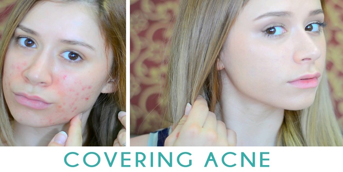 amazing-makeup-hacks-to-cover-acne-and-pimples-4