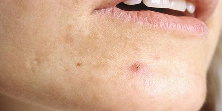 Prevents-acne-breakouts