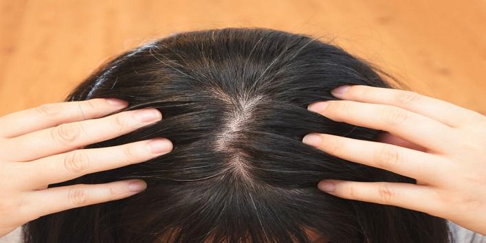 Prevents grey hair