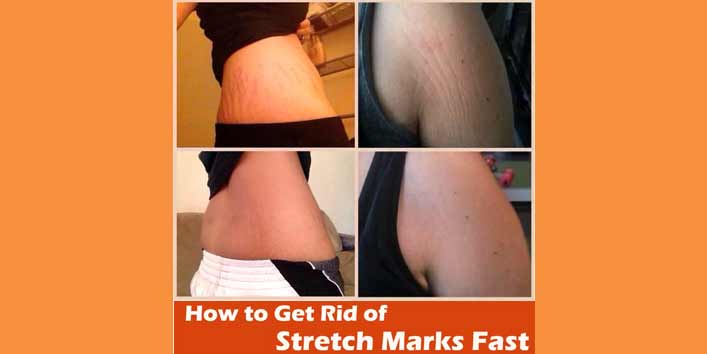Fades Stretch Marks Easily!