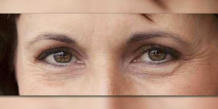 Get Rid Of Wrinkles Around Eyes