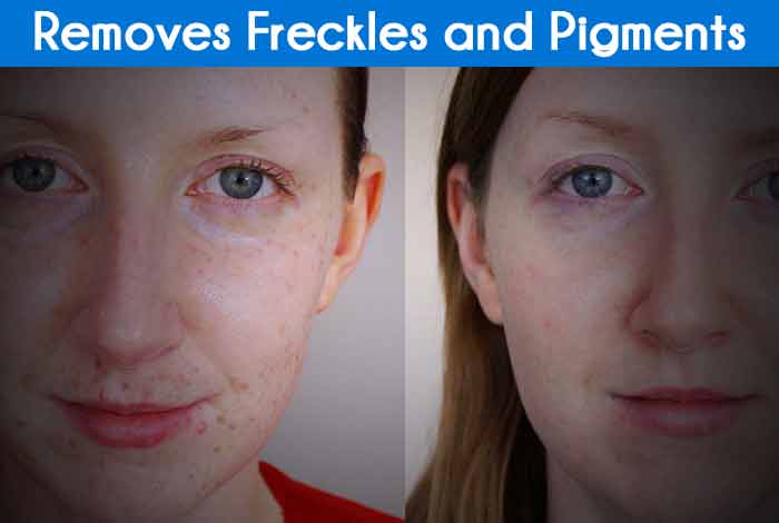 Removes Freckles and Pigments