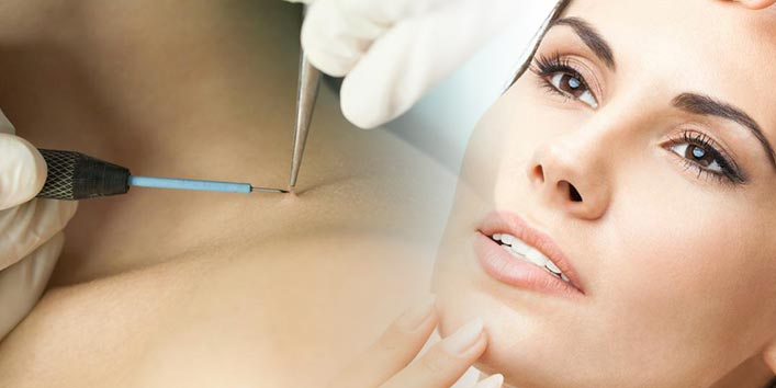 Medical procedures for removal of skin tags