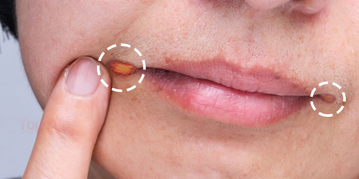 How to identify the symptoms of Angular cheilitis
