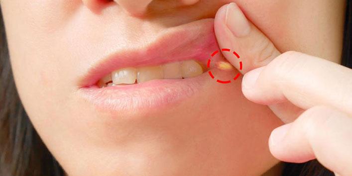 Top 9 treatment methods of Angular cheilitis